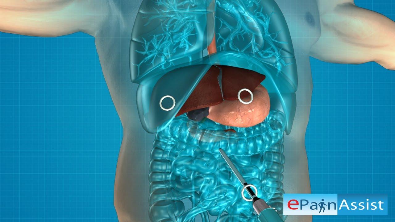 debris in gallbladder - 1280×720