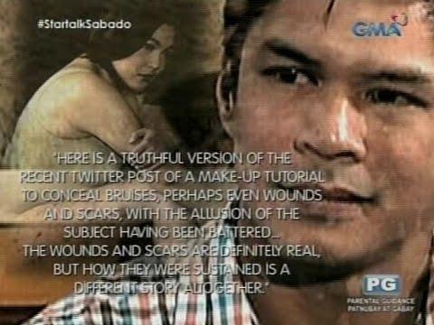 Startalk: Ang buwelta ni Raymart Santiago sa estranged wife na si Claudine Barretto