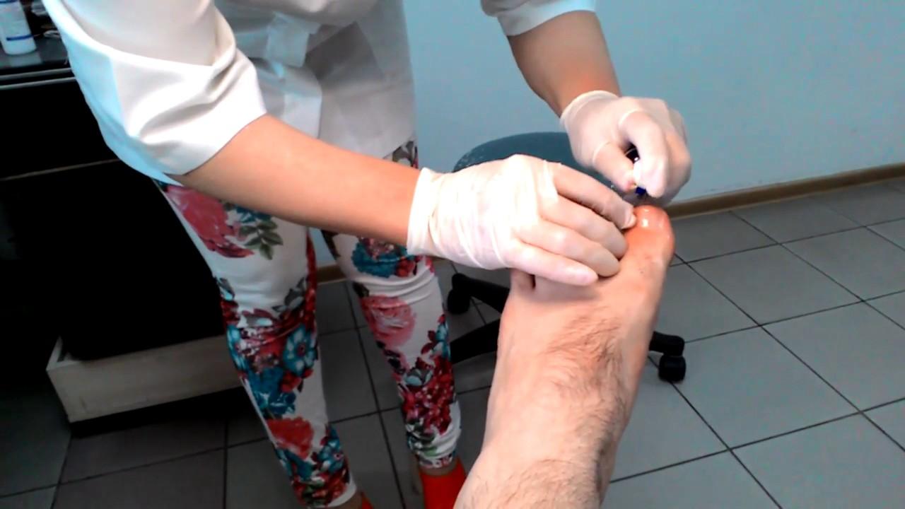 Мазь от грибка на ногтях ног экзодерил цена