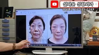 50세 어머니의 안면거상과 안면윤곽 수술 후 변화 모습…