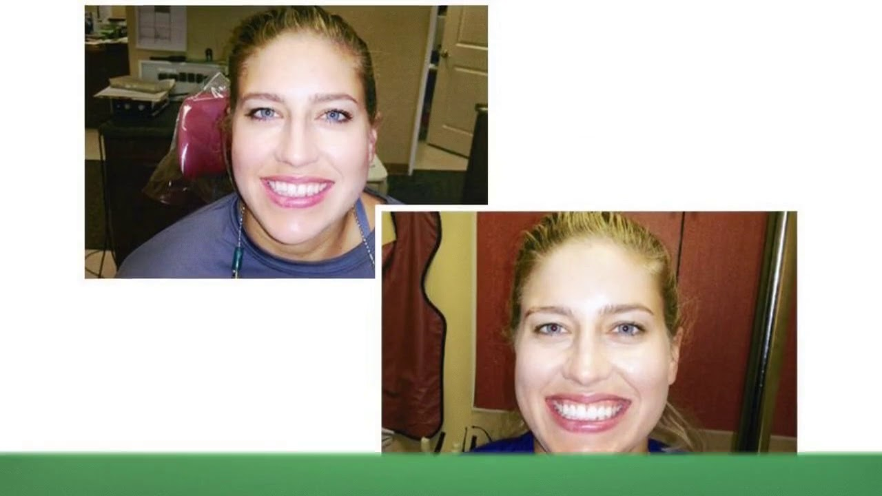 Brentwood Center For Cosmetic Dentistry : Dental Implants in West Los Angeles, CA