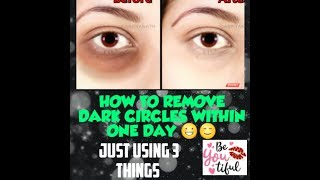 HOW TO REMOVE DARK CIRCLES IN ONE DAY/ ONLY USING 3 NATURAL THINGS