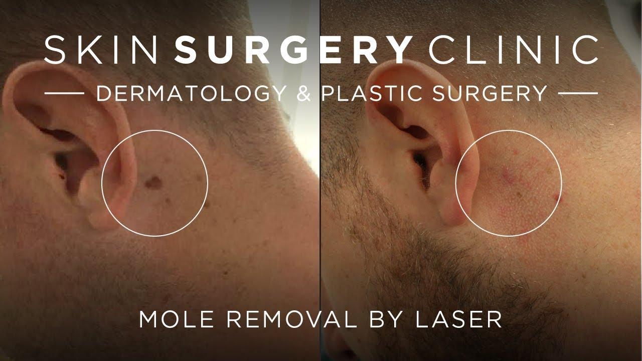 Mole Removal from £295 Leeds, Bradford, Harrogate, Skin Surgery Clinic