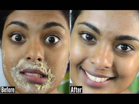 Face Spots Removal Naturally In 7 Days - Remove Dark Spots, Black Spots and Acne Scars