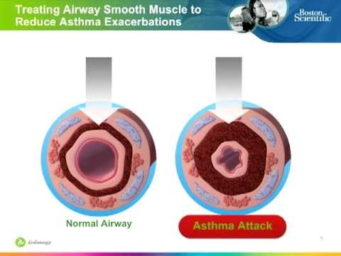 Bronchial Thermoplasty: Procedure to Improve Asthma Control for ...