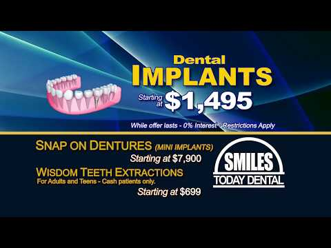 Dental Implants in Las Vegas 702.655.6777