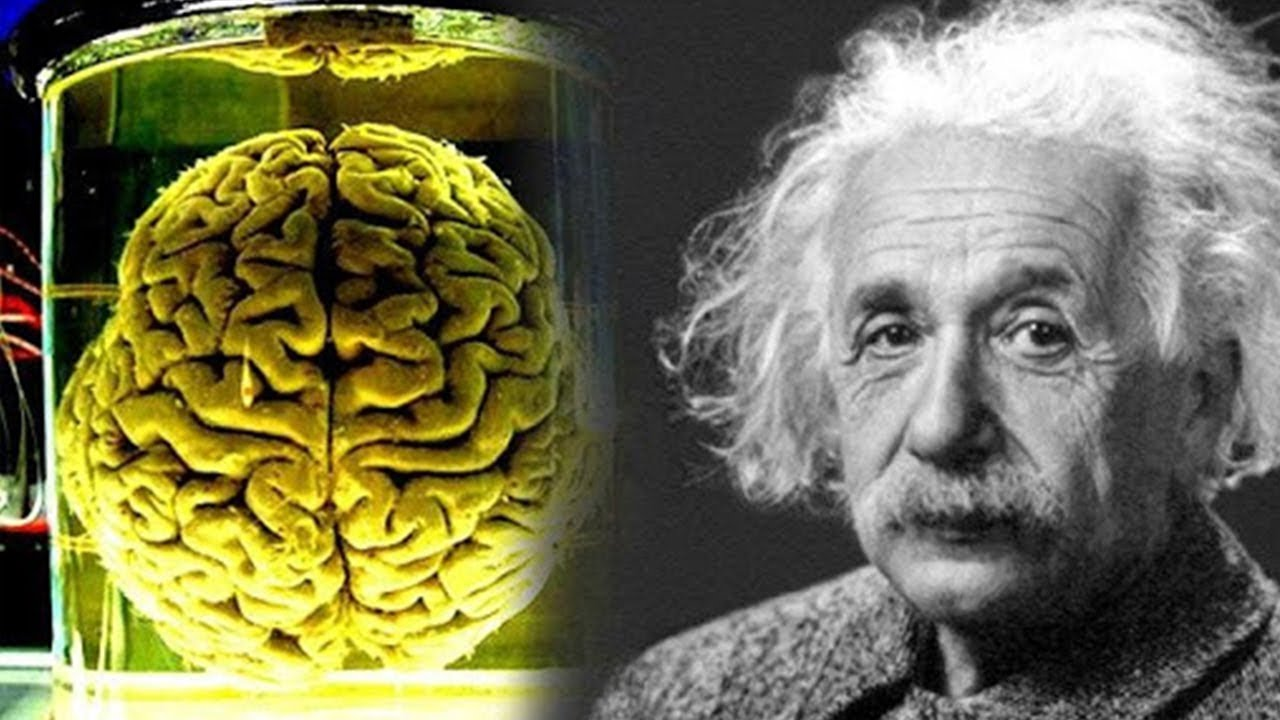 Albert Einstein का दिमाग क्यों था खास ? How Albert Einstein Brain Is Really  Different Than Others - YouTube