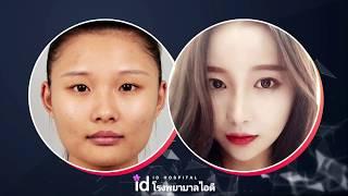 ศัลยกรรมเกาหลี: การเปลี่ยนแปลงของสาวจีนหลังการผ่าตัดที่โรงพยาบาลไอดี