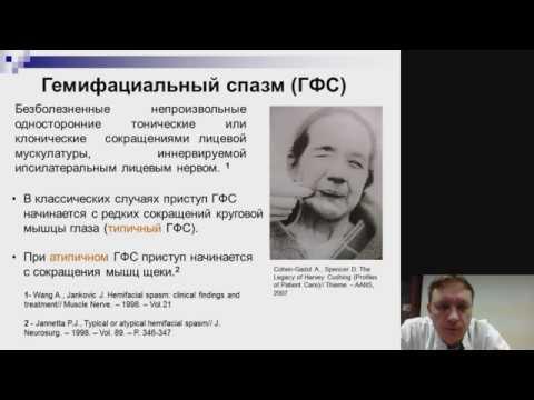 Hemifacial Spasm- Гемифациальный спазм - спазм мышц лица - лечение - операция - ботулотоксин