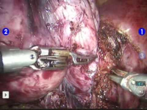 surgery 10 cm cervical fibroid dr luthringer youtube