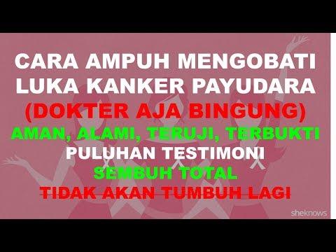 cara-ampuh-mengobati-luka-kanker-payudara-(dokter-aja-bingung)