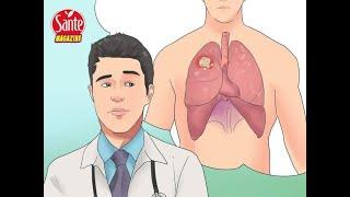 Les premiers symptômes qui prouvent qu'un cancer est en train de se propager dans votre corps
