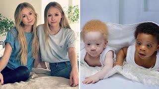 10 einzigartige Zwillinge, v๐n denen Du nicht glaubst, dass es sie gibt