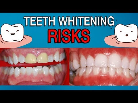 The Risks of Teeth Whitening