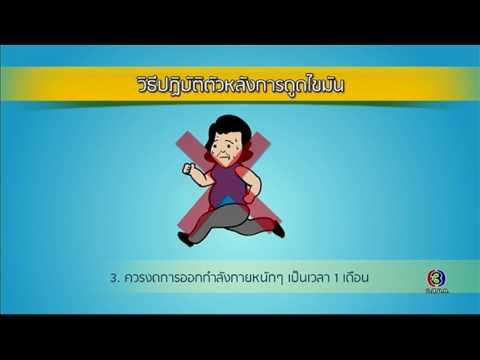 ย้อนหลัง Health Me Please | ดูดไขมัน ตอนที่ 4 | 03-08-60 | Ch3Thailand