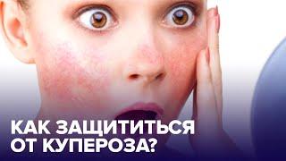 Как предотвратить появление КУПЕРОЗА Советы дерматолога
