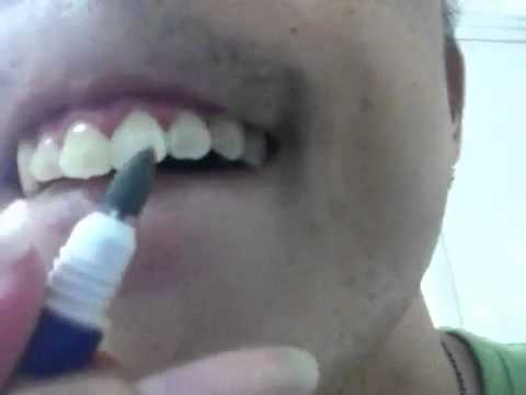 How to remove coffee stains from your teeth inexpensively