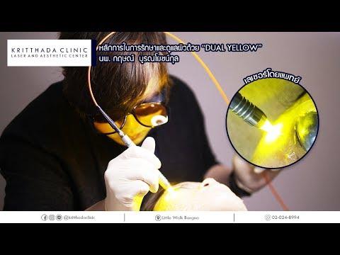 หลักการในการทำ เลเซอร์ Dual Yellow หน้าใส ลดรอยแดงสิว ผิวขาวกระจ่างใส ที่ KritthadaClinic