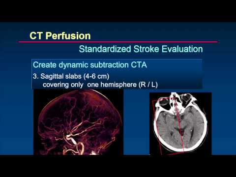 ISCT 2014: Brain Perfusion - Dr. Prokop