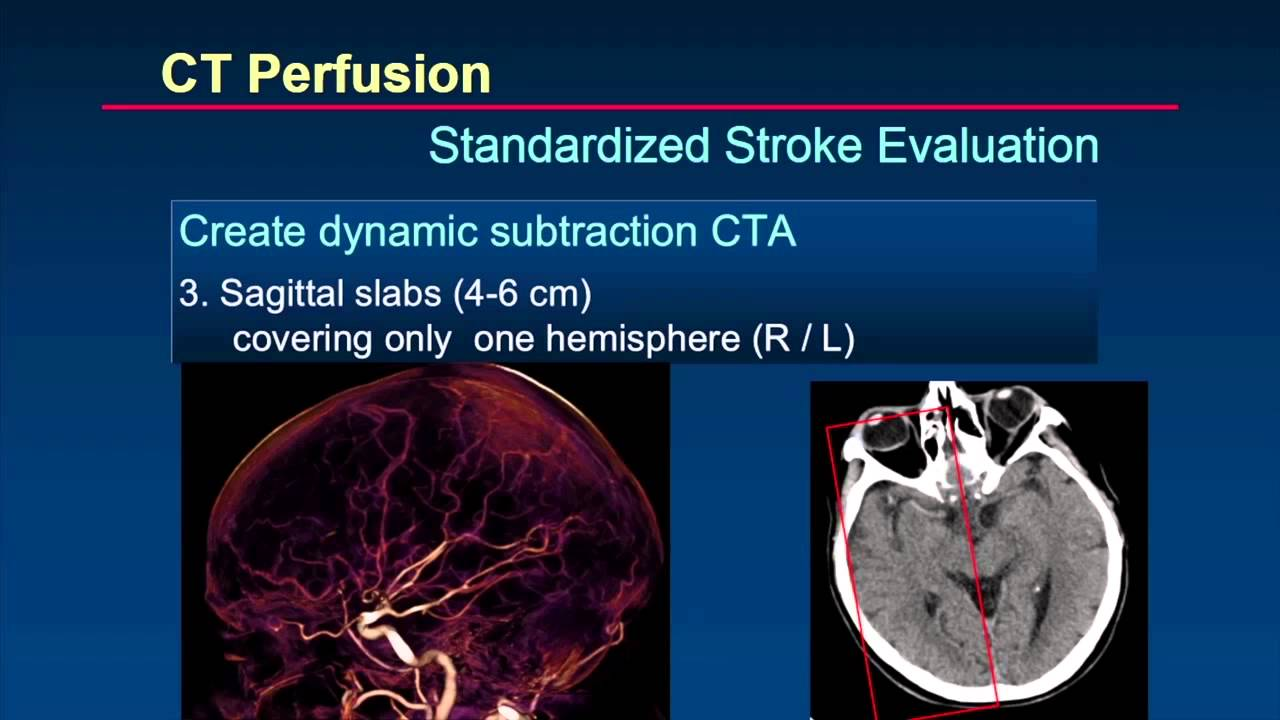 ISCT 2014: Brain Perfusion - Dr. Prokop - YouTube