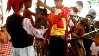 Repeat youtube video BATA AKSIDENTING NAPUTOL ANG KAMAY NG MAGIKERO