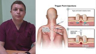 Блокада триггерных точек | Trigger Point Injection