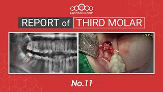 [ENG] Extraction of vertically impacted Rt. Mn third molar [#Dentalbean]