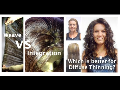 Weaves vs integration which is better for diffuse thinning hair weaves vs integration which is better for diffuse thinning hair pmusecretfo Image collections
