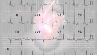 ЭКГ - Зүүн ховдлын томрол - 2(, 2015-01-13T12:34:56.000Z)