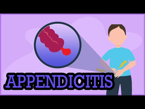 Appendicitis, Causes, Signs And Symptoms, Diagnosis And Treatment.