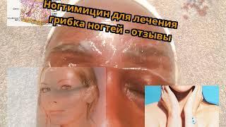 Ногтимицин для лечения грибка ногтей - отзывы