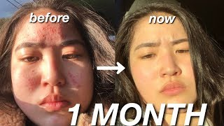 HOW I CLEARED MY SKIN IN A MONTH || skincare routine + acne journey with pictures
