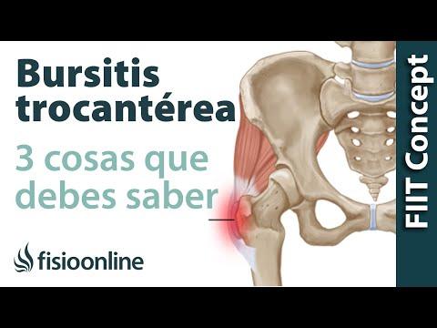 3 cosas que debes saber sobre la trocanteritis o bursitis trocantérea