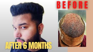 Hair Transplant Journey (SLIDESHOW) | Day 0 to 6 Months | best hair transplant in India 2019