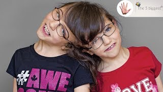 Do conjoined twins share thoughts? Unbelievable facts! ~ Body Bizarre