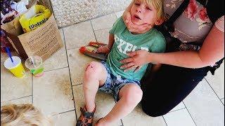 Bloody Escalator Accident 🚑
