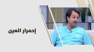 د. سالم ابو الغنم - إحمرار العين