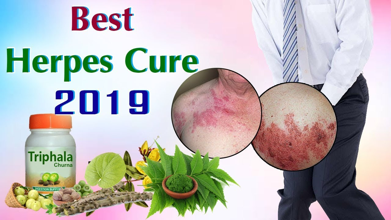 Best Herpes Cure 2019 - Life Changing Video For Herpes Sufferers