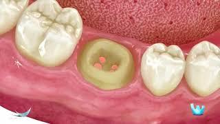 Odontologia Carvalho - Prótese Unitária