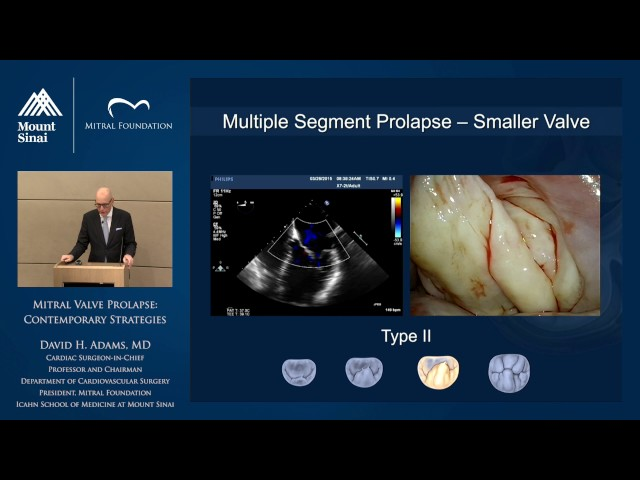 Mitral Valve Prolapse: Contemporary Strategies