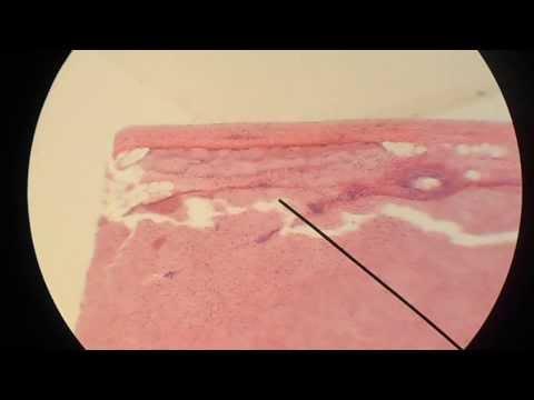 Миокард (сердечная мышца)