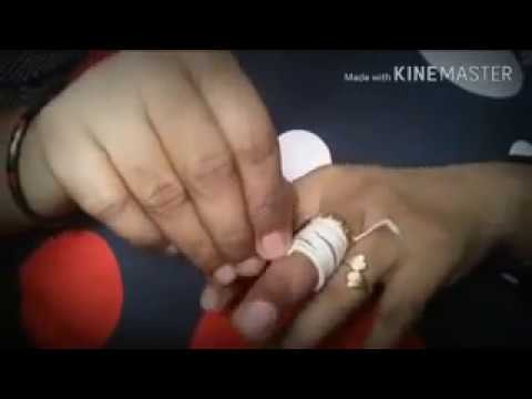 trick ऊँगली में फसी अंगूठी कैसे निकाले how to remove ring from finger 2016