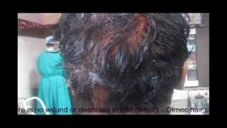 HT Procedure Step 2 Back of the scalp just after strip harvesting Hair Transplant Centre Delhi Thumbnail