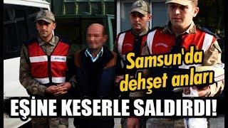 Samsun'da öfkeli koca: Keserle saldırdı!