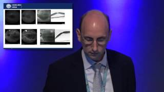 Euretina/ESCRS 2016 - MicroPulse® Laser Therapy for Central Serous Chorioretinopathy