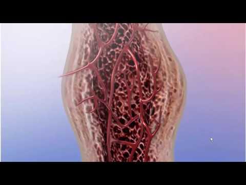 Как образуется костная мозоль после перелома видео