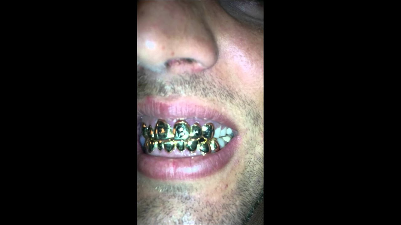 how to make grills for your teeth
