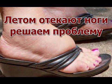 Летом отекают ноги - решаем проблему