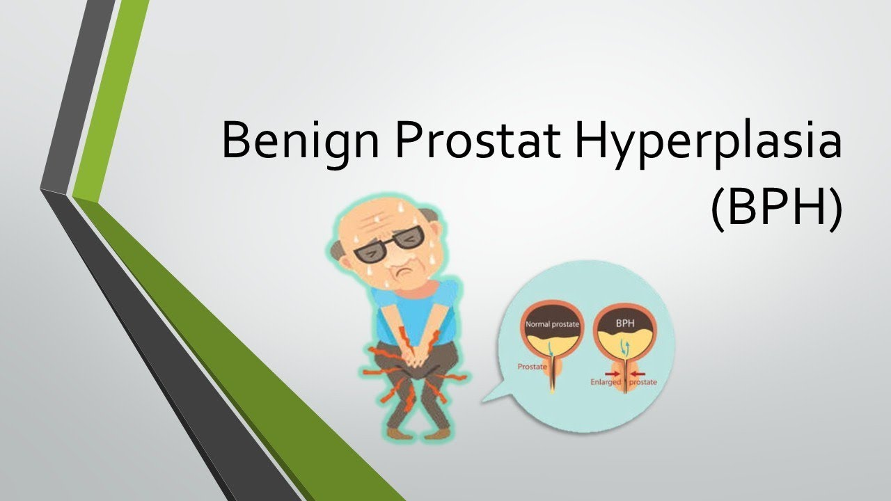 Tanda Tanda BPH Apakah Tanda Tanda Prostat Yang Diperbesar