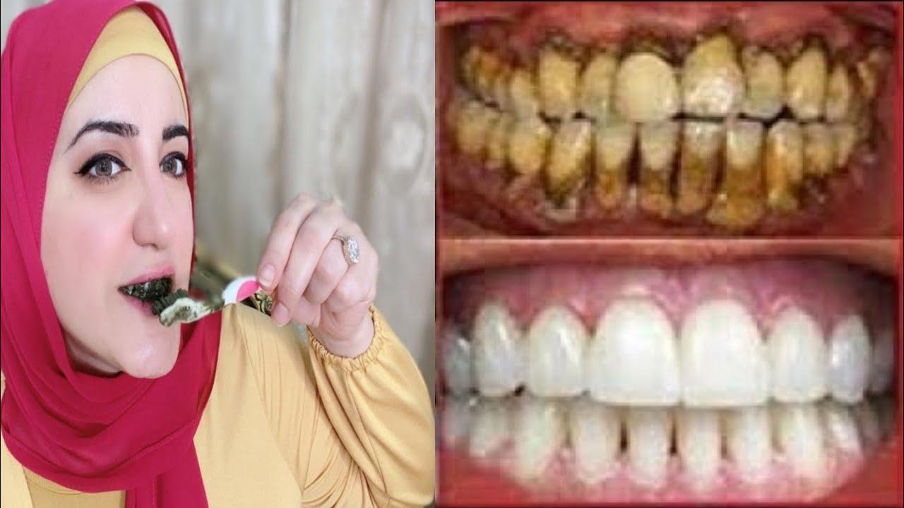 أقسم بالله لن تلجأ لطبيب الأسنان لتبييض الأسنان ولا لإزالة الجير سيسقط وحده بعد الغسيل بهدا المحلول